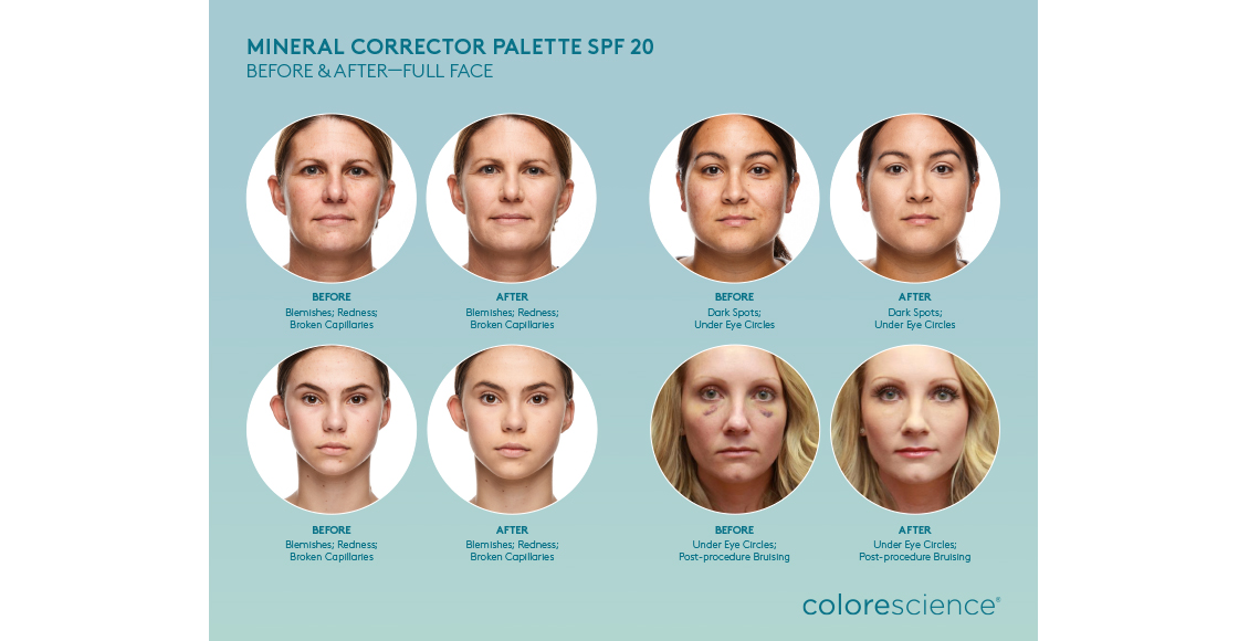 Clarion Medical - Colorescience Mineral Makeup